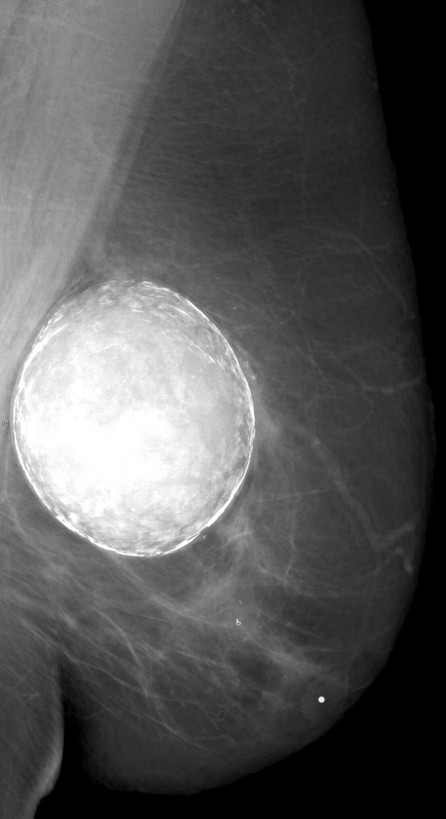 a black and white photo / xray of a breast implant